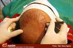 کچلها طعمه دکتر قلابی کاشت مو/ تعطیلی مطب غیرمجاز در تهرانپارس+تصاویر